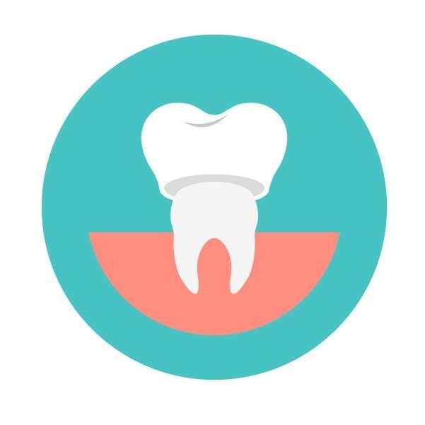 ฟันปลอม - ฟันปลอมถาวร - ครอบฟันปลอม