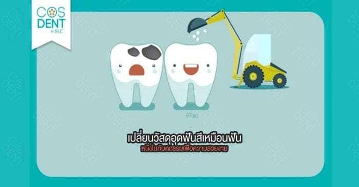 อุดฟันสีเหมือนฟัน ต่างจากอุดฟันสีเงินอย่างไร